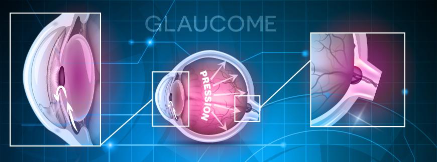 Glaucome : l'essentiel à savoir en 4 points