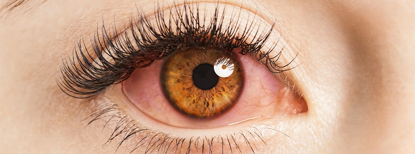 Red eyes: What to do and when to see a doctor